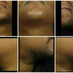 LASER-HAIR-REMOVAL-FOR-BLACK-MEN1-300x196