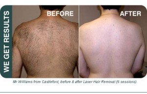 ATLANTA LASER HAIR REMOVAL